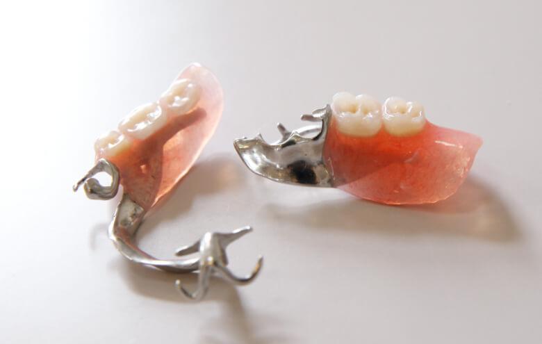 入れ歯のメリット・デメリット